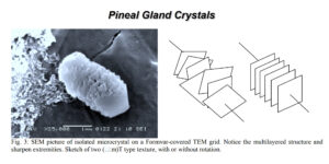 The Body Contains Batteries and The Pineal Gland is a Radio Frequency-Electromagnetic Crystalline Receiver